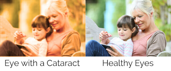 Vision before and after Cataract Surgery