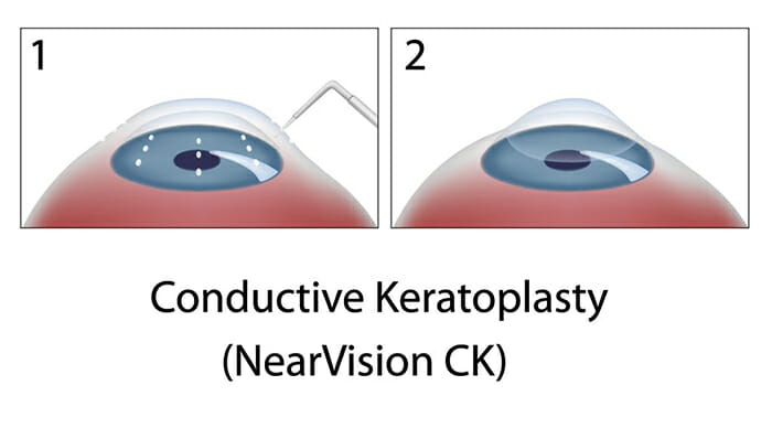 Conductive Keratoplasty Procedure Diagram