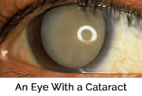 Eye with Cataract Example