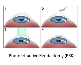 PRK – Photorefractive Keratectomy Fort Worth