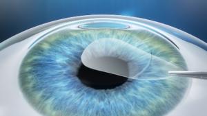 SMILE Eye Surgery Procedure Diagram #2