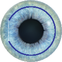 SMILE Eye Surgery Procedure Diagram #4