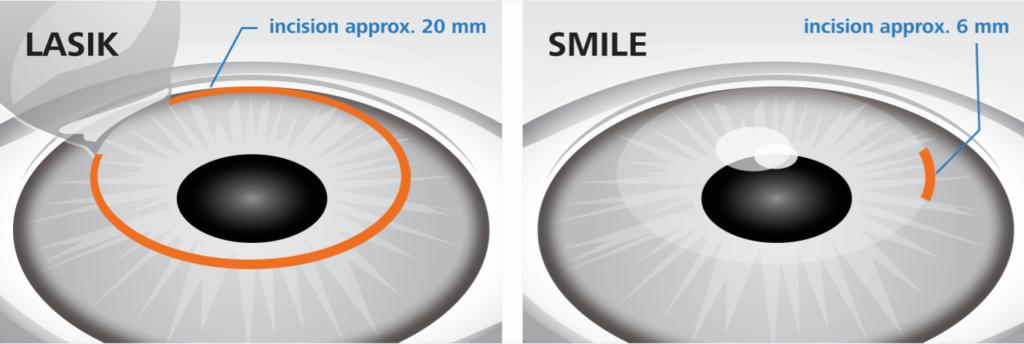 LASIK vs. SMILE eye surgery procedure diagram