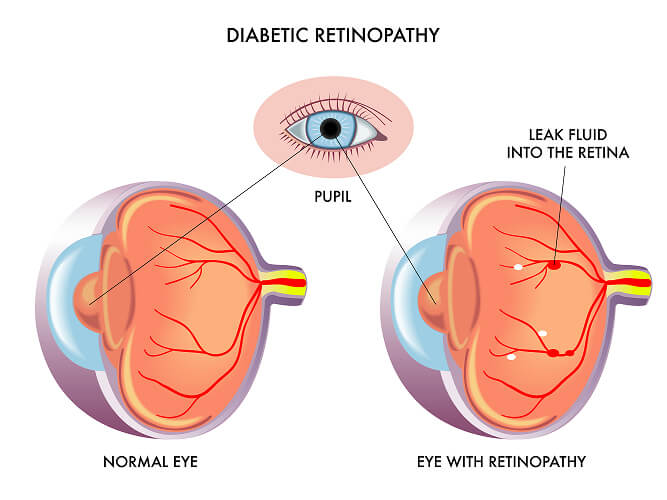 Chart Showing How Diabetic Retinopathy Affects the Eye