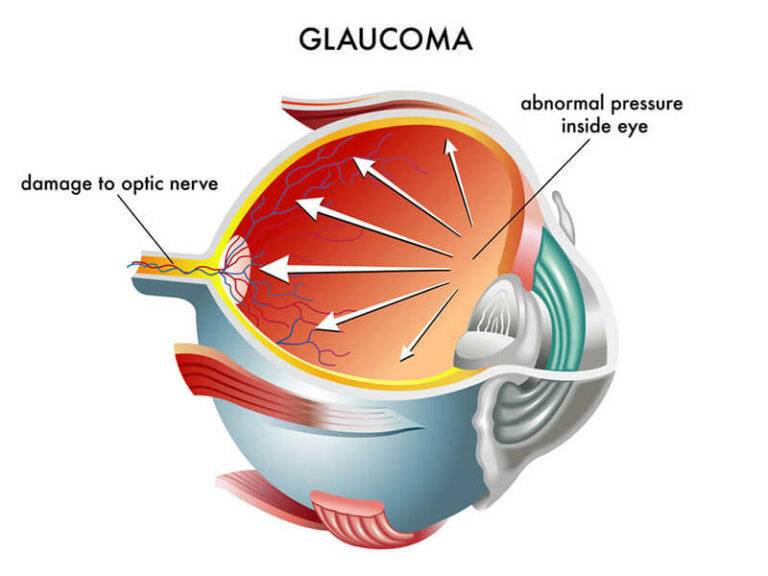 Chart Showing How Glaucoma Affects an Eye