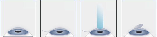 Chart Showing the LASIK Eye Surgery Procedure